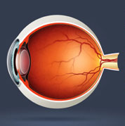 retinopathie